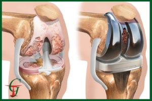 Операции сустав коленный сустав температура при хруст суставов